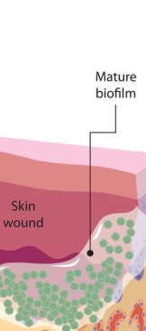 biofilm development stages slice